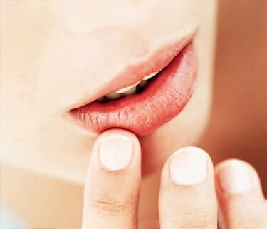 Dry Mouth Canker Sores