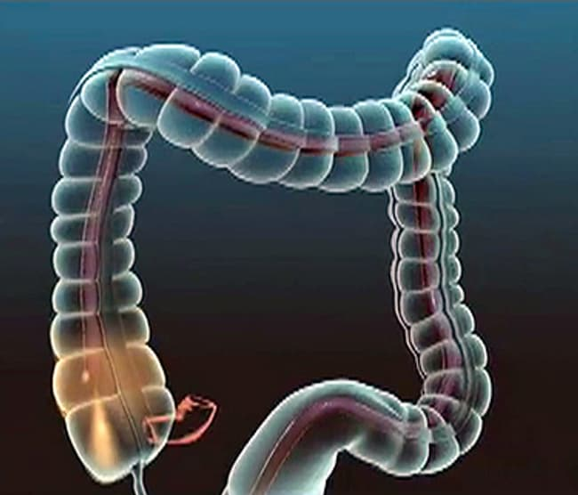 Image result for colonoscopy