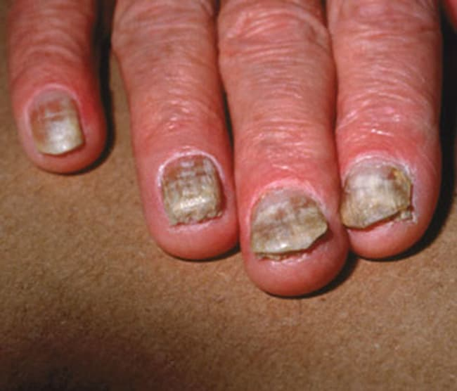 Skin Fungal Infections - Watch WebMD Video